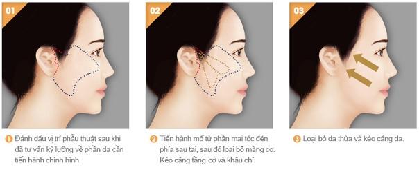 Phẫu thuật căng da mặt - Thẩm mỹ viện Nguyễn Thế Thạnh